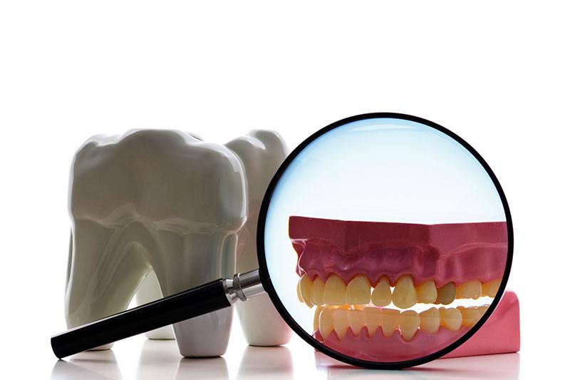 Root Canal - Loreto R. Sicam, Jr., DMD, Inc., San Leandro Dentist